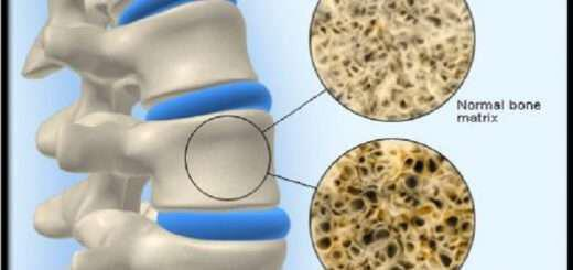 to-35-ton-ellinidon-paschi-apo-osteoporosi
