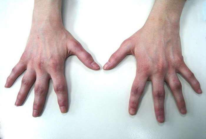 arthritida-fisiki-tropi-antimetopisis