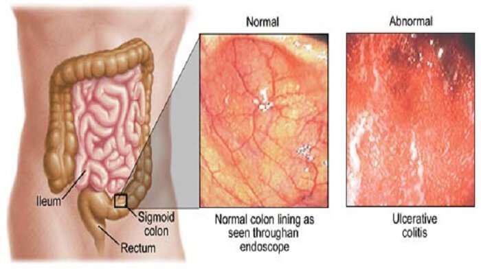 antimetopisi-tis-nosou-tou-crohn-mia-diaforetiki-prosengisi-ulcerative colitis