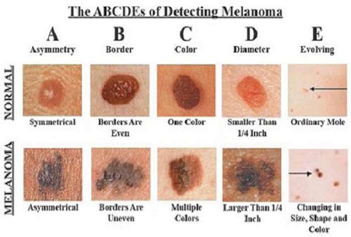 anagnorise-ton-karkino-tou-dermatos-isos-soseis-tin-zoi-sou-recognize-skin-cancer
