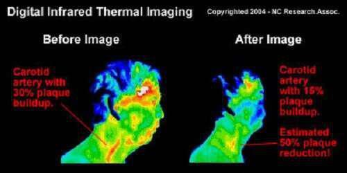 stefaniaia-nosos-6-bimata-gia-na-tin-therapeysete-fisika-carotid_artery_infrared_thermal