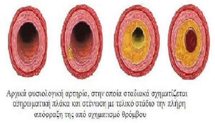 holisterini-pote-einai-epikindini-deiktis-athiromatosis-artery