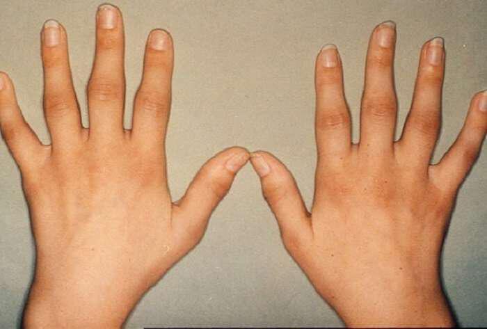 olistiki-antimetopisi-arthroseon-arthritidas-kai-arthritikon