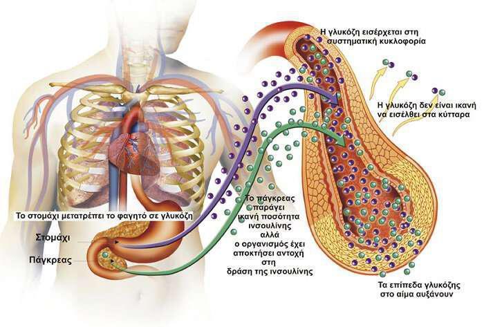 antistasi-stin-insoulini-kai-yperinsoulinaimia-ti-einai-kai-epiptoseis