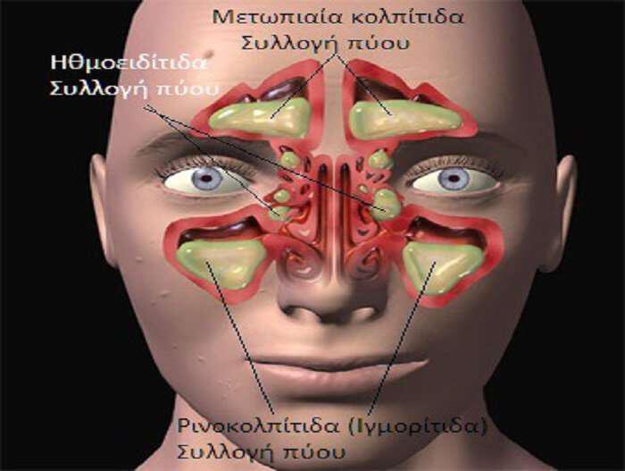 igmoritida-votana-kai-syntages-gia-fysiki-antimetopisi