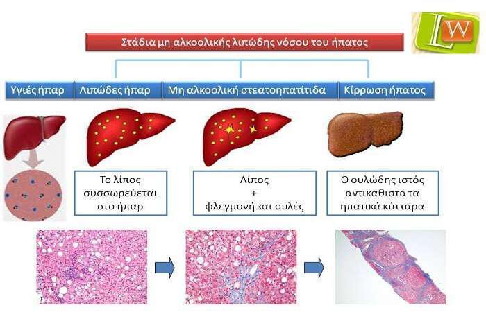 lipodes-ipar-prolipsi-kai-enallaktiki-antimetopisi
