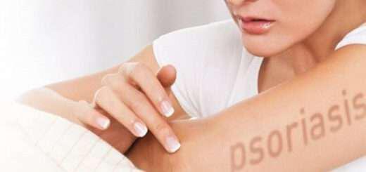 psoriasi-psoriasiki-arthritida-enallaktiki-antimetopisi