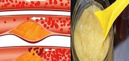 me-liges-koutalies-apoxairetiste-fragmenes-artiries-ypertasi-xolhsteroli