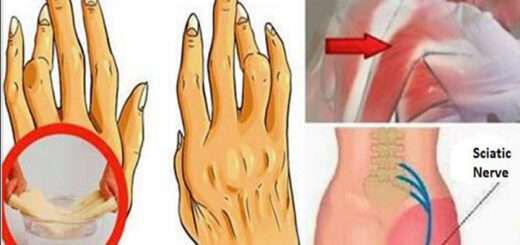 veltionei-arthritida-osfyalgia-kai-ishyalgia-kalytera-apo-hapia