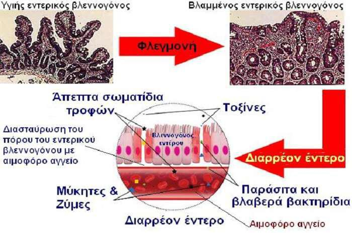 diarreon-i-diaperato-entero-kyria-aitia-asthenion-fysiki-antimetopisi