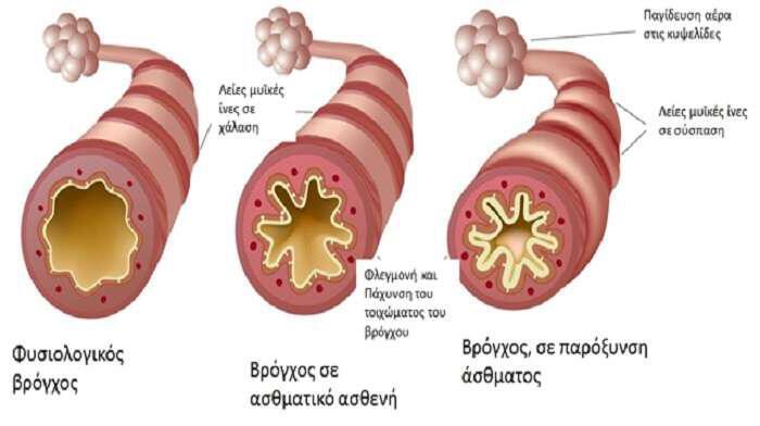 asthma-mia-sovari-hronia-nosos-kai-pos-antimetopizetai-fysika
