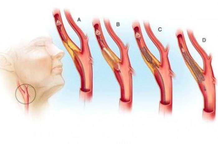 boulomena-aggeia-artiriosklirosi-aities-synepeies-kai-antimetopisi