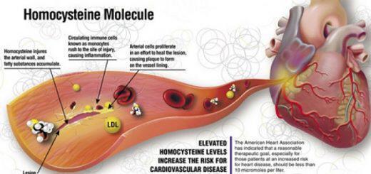 omokysteini-giati-einai-epikindyni-kai-pos-antimetopizetai