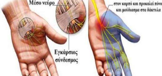 syndromo-karpiaiou-solina-aities-symptomata-therapeia