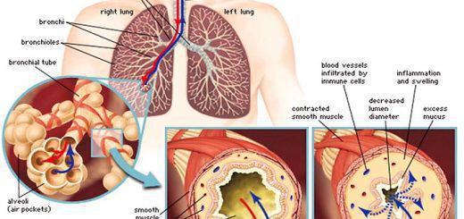 asthma-kai-antimetopisi-me-enallaktikes-therapeies