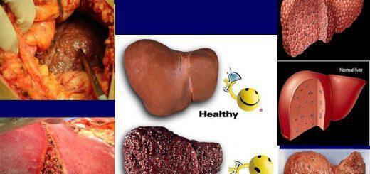 kirrosi-ipatos-aities-symptomata-antimetopisi