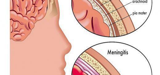 miniggitida-symptomata-pou-proeidopoioun