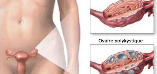 syndromo-polykystikon-oothikon-mia-ypouli-ormoniki-diatarahi