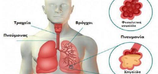 pnevmonia-aities-symptomata-prolipsi-enallaktiki-antimetopisi