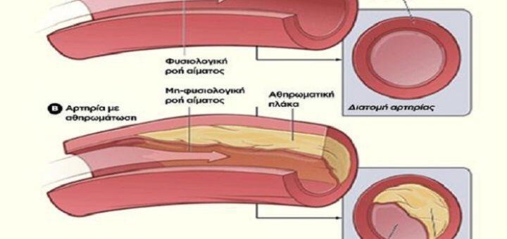 athiromatiki-plaka-mporei-na-dimiourgithei-mesa-se-molis-3-hronia