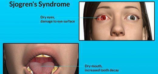 aftoanoses-astheneies-syndromo-sjogren-symptomata-kai-diatrofi