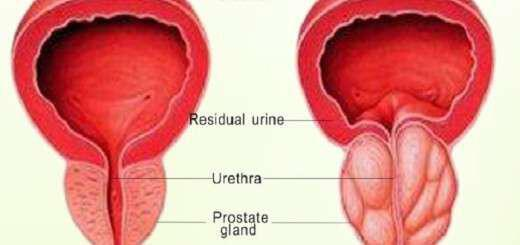 prolipsi-ke-prostasia-gia-ton-prostati