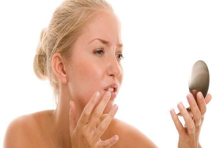 Διώξτε άφθες, έρπη και πληγές από το στόμα σας