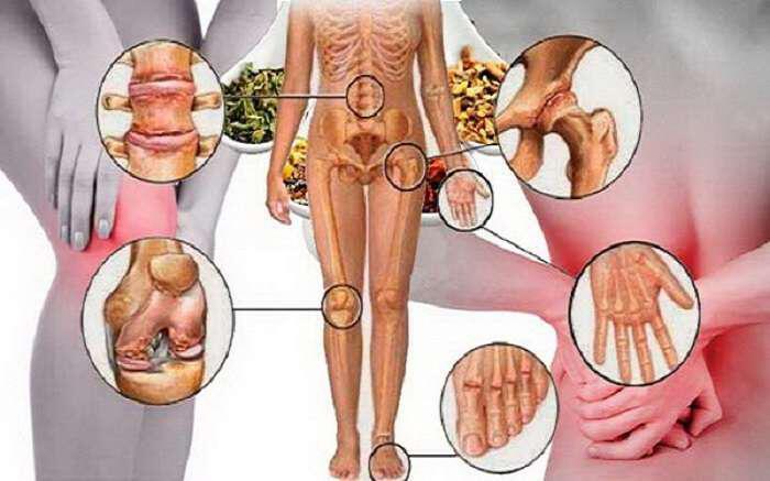 syntagi-endynamosis-kai-apokastasis-oston-gonaton-arthroseon
