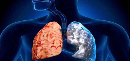 hronia-apofraktiki-pnevmonopatheia-hap-ti-einai-symptomata-antimetopisi