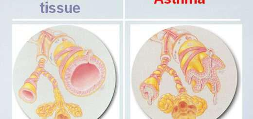 fytotherapeia-to-kleidi-tis-therapeias-tou-asthmatos