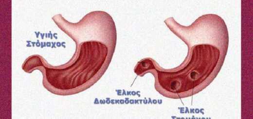 elkos-stomahou-aities-symptomata-diatrofi-kai-therapeia