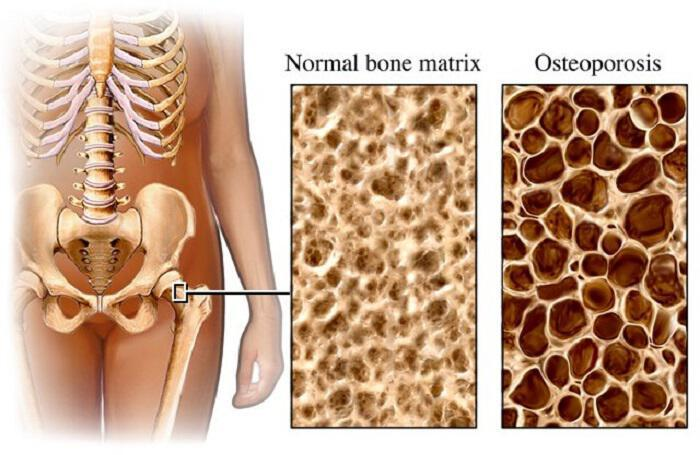 i-osteoporosi-einia-mia-metavoliki-nosos-o-rolos-tou-zeolithou