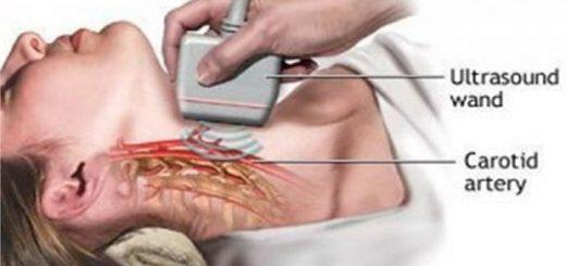 triplex-karotidon-simantiko-diagnostiko-ergaleio
