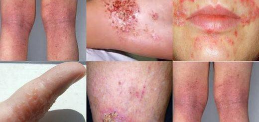 dermatitida-kai-enallaktiki-antimetopisi