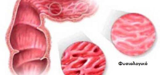 syndromo-everethistou-enterou-i-spastiki-kolitida-antimetopisi