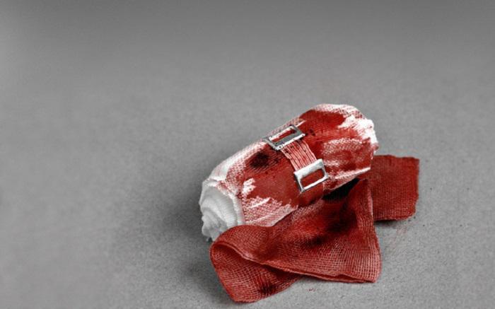 Πώς να σταματήσετε μια σοβαρή αιμορραγία