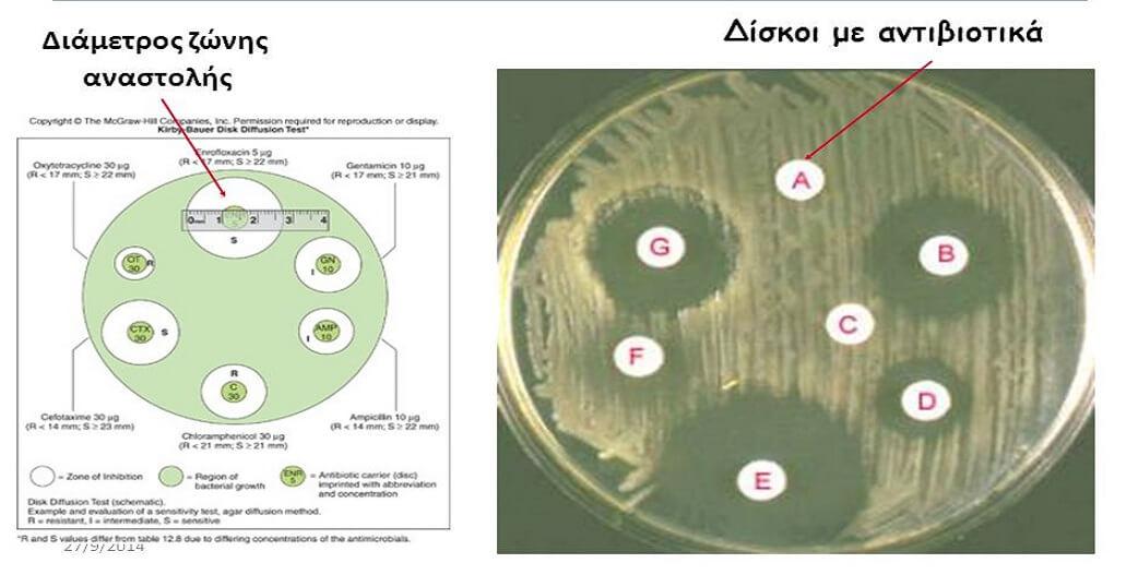 Αντιβιόγραμμα: Τι είναι και η αξία του στην αντιμετώπιση του φαινομένου της μικροβιακής αντοχής