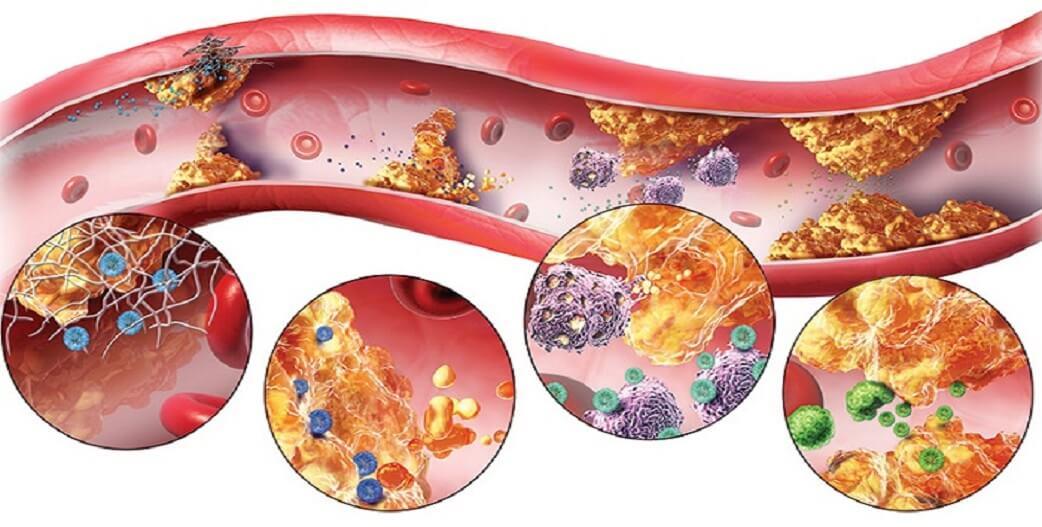 Ομοκυστεΐνη: Προγνωστικός δείκτης αθηρωμάτωσης και καρδιαγγειακών επεισοδίων