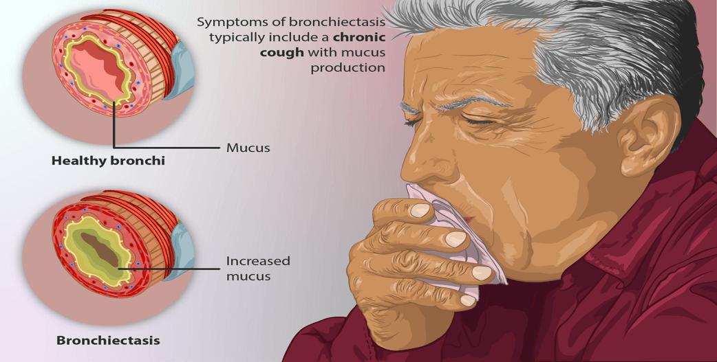 Βρογχεκτασίες: Τί είναι, πού οφείλονται, συμπτώματα και αντιμετώπιση